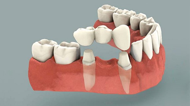 Capsula Dentaria Sanguinamento Gengivale Estetica del Sorriso Impianti Dentali Roma Studio Dot Massimiliano Tedaldi Odontoiatria Roma Chirurgia Maxillo facciale 01