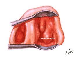 Poliposi nasale Endoscopia nasale Sinusite Ipertrofia Turbinati Decongestione Turbinati Deviazione Settale Patologia Nasale 06